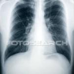 inte lätt att vara barn och ha tuberkulos